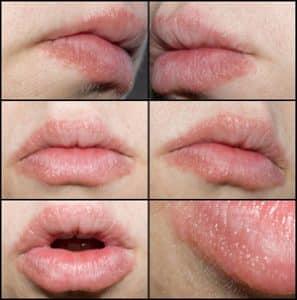 Allergische reactie op slaapmedicatie