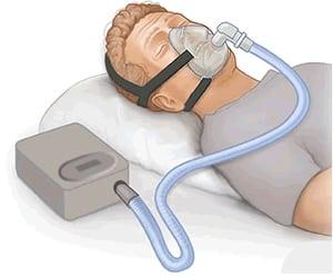 CPAP apparaat op vakantie gebruiken
