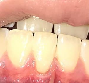 Tandenknarsen oplossingen